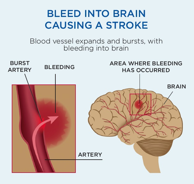 Bleed into brain causing a stroke